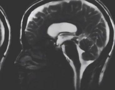 Cerveau et Respiration_Mylène GUILLOT_Magnétiseuse Rebouteuse Relaxologue